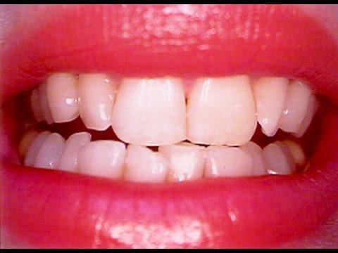 فلسطين اليوم - شاهد خلطة عجيبة لتبييض الأسنان في 10 دقائق