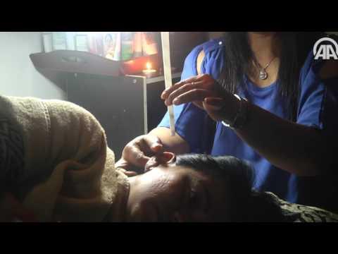 العرب اليوم - شاهد  أغرب طريقة لتنظيف الأذن