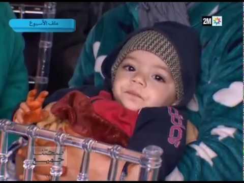 العرب اليوم - شاهد حملة لختان الأطفال في عمالة درب السلطان الفداء
