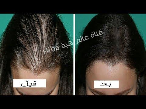 فلسطين اليوم - تعرّف على أقوى وصفة لمنع تساقط الشعر