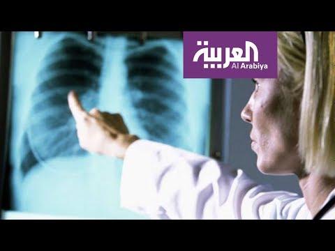 فلسطين اليوم - شاهد السيجارة الالكترونية لا تسبب تجمّع الماء في الرئة