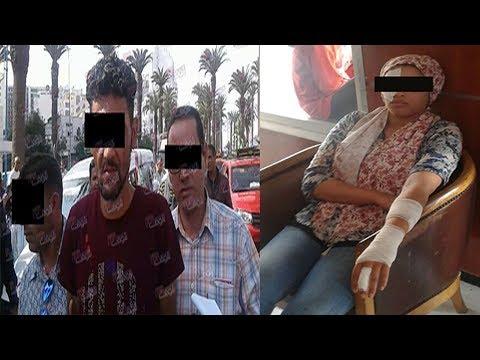 فلسطين اليوم - رجل يتسبب في تشويه جسد أستاذة