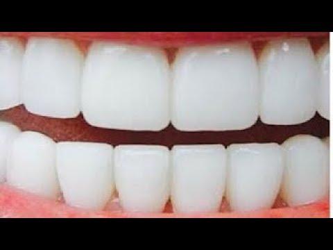 فلسطين اليوم - بالفيديو تبييض الأسنان في دقيقتين وإزالة الاصفرار بمكونين فقط
