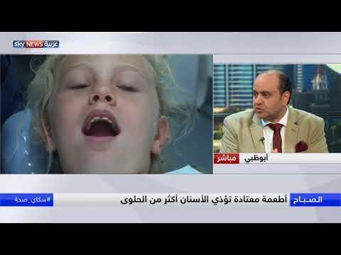 فلسطين اليوم - الأطباء يوصون بالتقليل من الحلوى