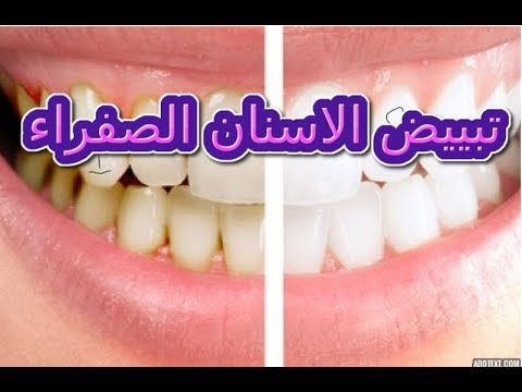 وصفة مذهلة لتبييض الأسنان وإزالة الاصفرار