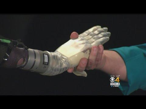 ابتكار ذراع اصطناعي كامل يتحرك مع إشارات العضلات