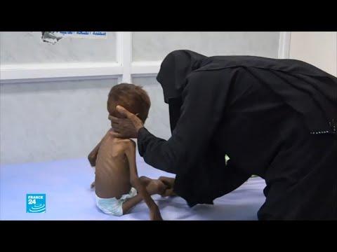 اليمن البلد الأكثر معاناة في العالم