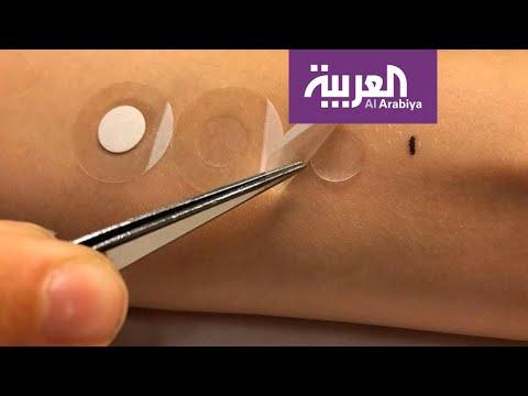 شاهد لصقة طبية تشخّص سرطان الجلد خلال دقائق