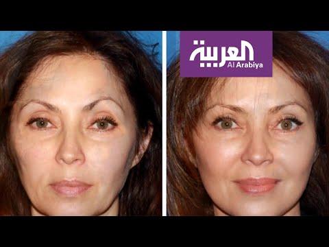 شاهد أبرز الإجراءات التجميلية لتخفيف آثار العمر والتقدم في السن