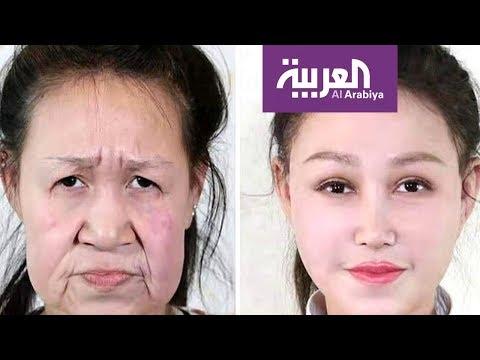 فتاة تحصل على وجه جديد بعد سنوات من التنمر