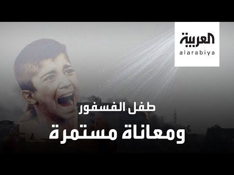مأساة مستمرة لطفل الفوسفور المحترق بالقصف التركي