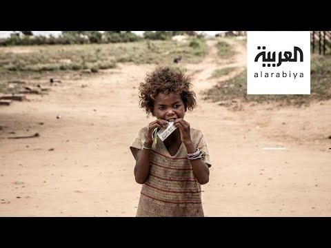 ملايين طفل سيعانون سوء التغذية الحادة بسبب كورونا